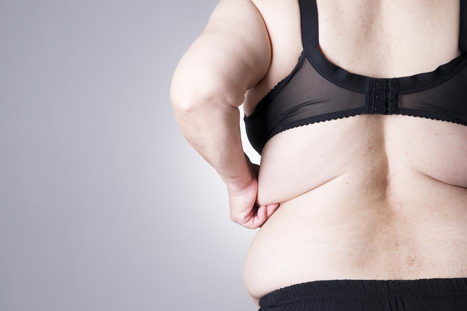 hogyan lehet elveszíteni pecs zsír okozhat chlamydia fogyást