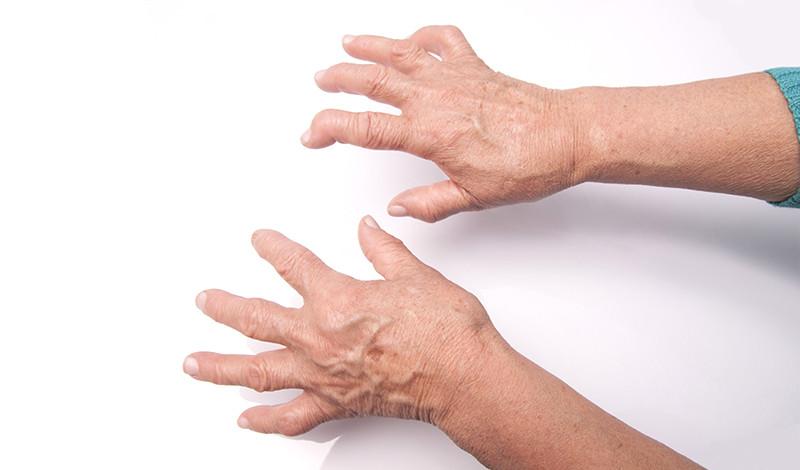 a reumás ízületi gyulladás okoz-e fogyást