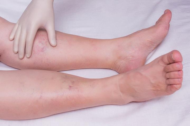 fogyás és lábduzzanat hogy elveszíthetjük a csípőnket