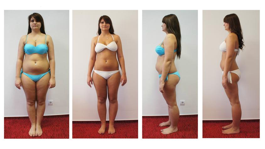 Dayana barátja fogyás előtt és után. Hogyan lehet fogyni fogamzásgátló injekció után?