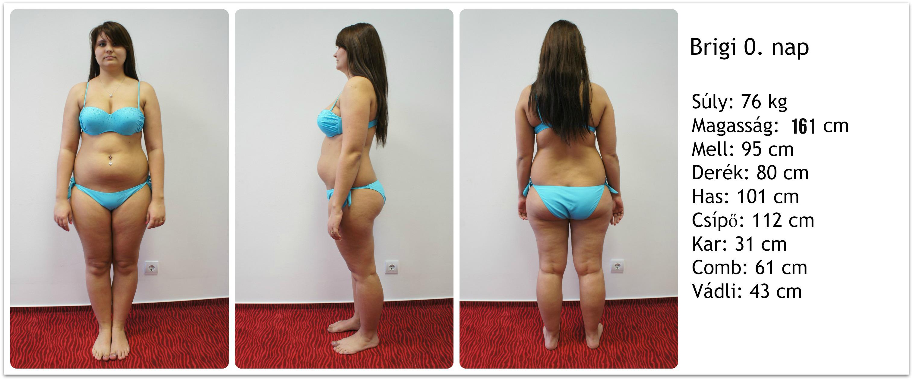 egy hónap alatt hatalmas súlyt veszít fogyás után beteg