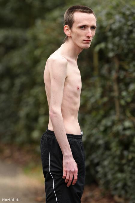 anorexiás fogyás kihívás