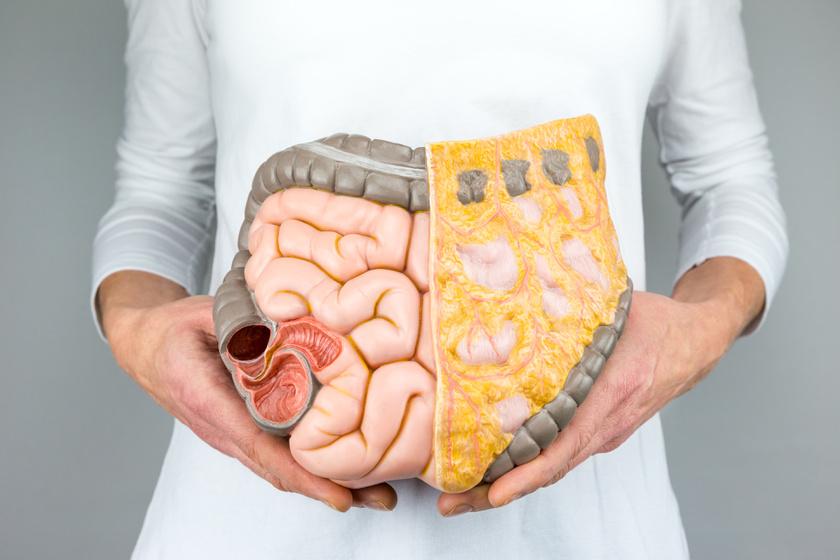 cinnulin pf fogyás távolítsa el a testzsírt