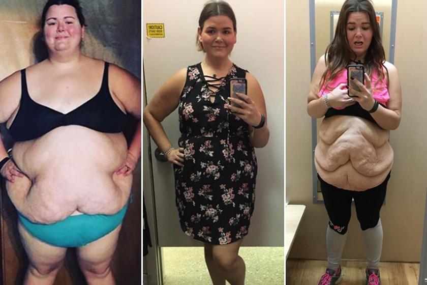 elképesztő fogyás átalakulási történetek zsírégetés varázslat